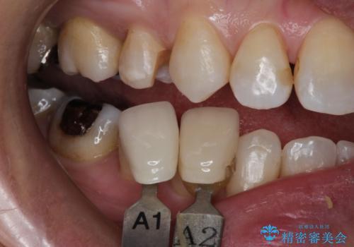 笑ったら銀歯が見える。 セラミックインレーによる治療の治療中