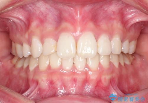ハーフリンガル矯正 抜歯をして前歯を下げるの治療後