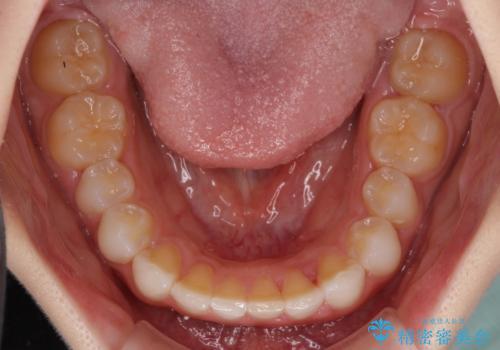 デコボコと深い咬み合わせの改善 インビザラインによる矯正治療の治療中