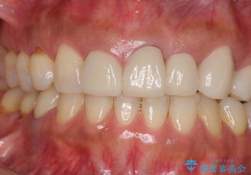 歯肉の高さをそろえたい 前歯の審美歯科治療の治療前