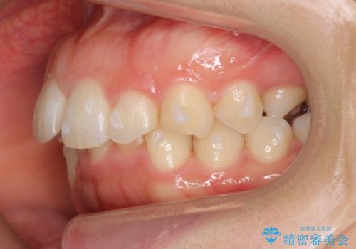 抜かない矯正 前歯がとび出ているのをマウスピースでの治療中
