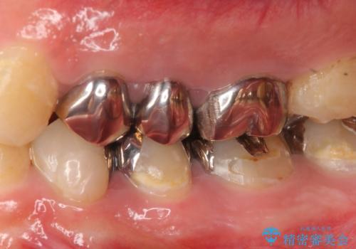 オールセラミッククラウン 根管治療・深い虫歯の治療の治療前