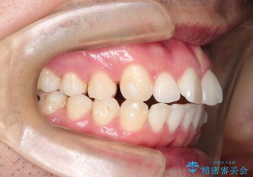 インビザラインで前歯のがたつきを目立たずに矯正治療の治療中