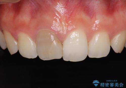 ぶつけて変色した前歯 オーダーメイドタイプのオールセラミッククラウンの治療前