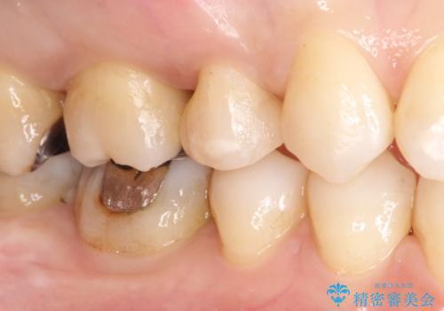 笑ったら銀歯が見える。 セラミックインレーによる治療の治療後