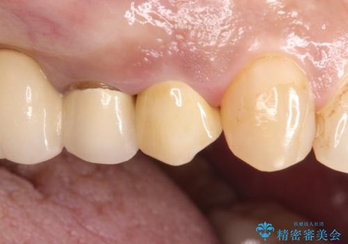 拡大鏡にて虫歯を除去。精度の高いセラミッククラウンの治療後