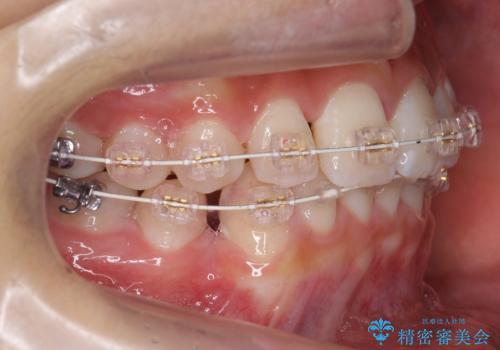 埋まっている犬歯を抜歯して、歯列矯正の治療中