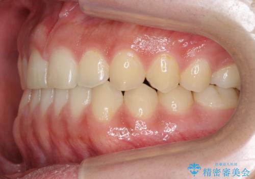 前歯のすきま 受け口 インビザラインでの治療後