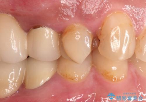 拡大鏡にて虫歯を除去。精度の高いセラミッククラウンの治療前