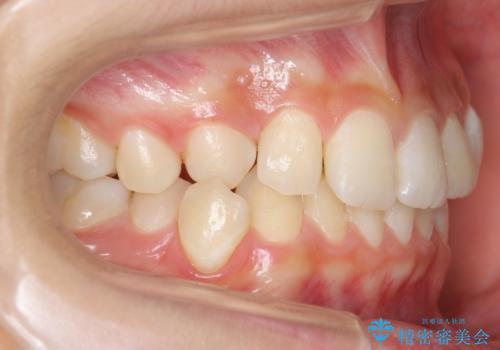 埋まっている犬歯を抜歯して、歯列矯正の治療前