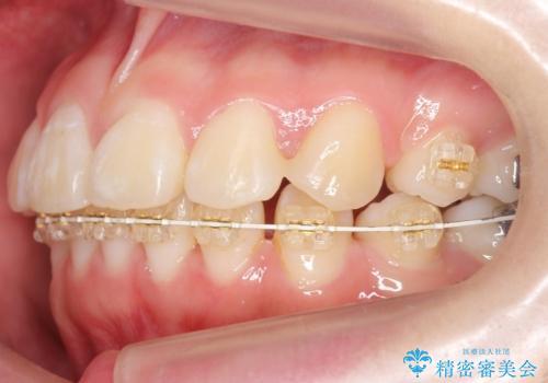 成人式に間に合う 前歯の矯正の治療中