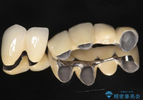 歯周病におかされた前歯の再建治療の治療後