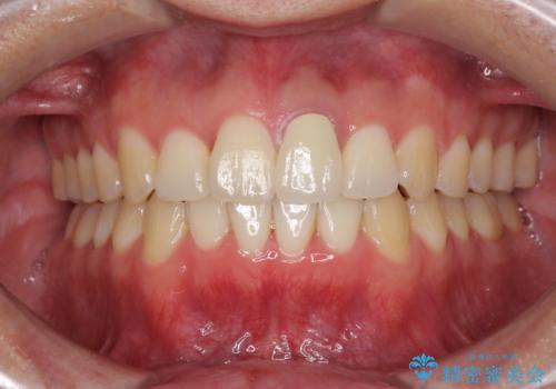 前歯の歯並びとクラウンを改善 <span class=