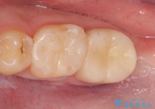 歯冠長延長術を併用した審美的セラミック治療の症例 治療後
