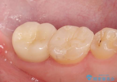歯冠長延長術を併用した審美的セラミック治療の治療後