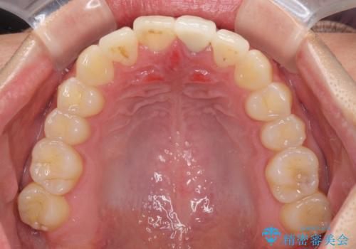 前歯の歯並びとクラウンを改善 インビザラインとオールセラミックの治療後