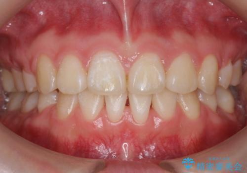 成人式に間に合う 前歯の矯正の症例 治療後