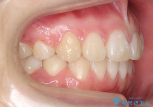 成人式に間に合う 前歯の矯正の治療後