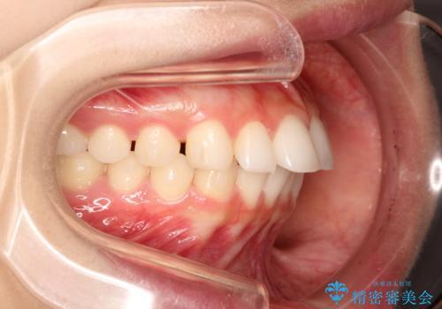 出っ歯の矯正治療 歯を抜かずにインビザラインでの治療中