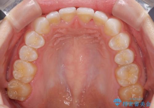 デコボコと深い咬み合わせの改善 インビザラインによる矯正治療の治療後