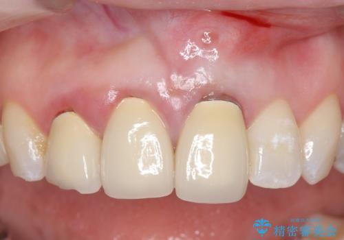 オールセラミッククラウン(スペシャル) 不揃いな前歯を美しくの症例 治療前