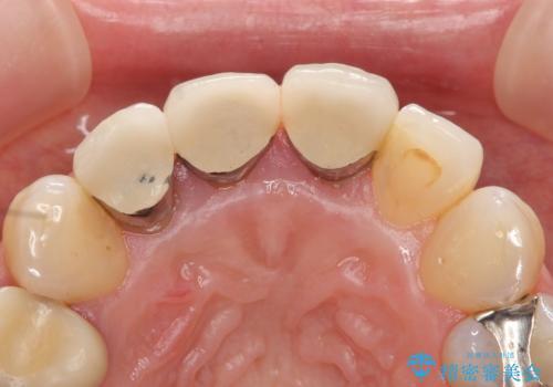 オールセラミッククラウン(スペシャル) 不揃いな前歯を美しくの治療前