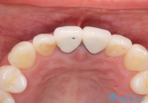 前歯の根元が黒い オールセラミッククラウンの装着による改善の治療前