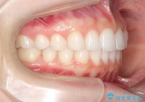 出っ歯の矯正治療 歯を抜かずに<span class=