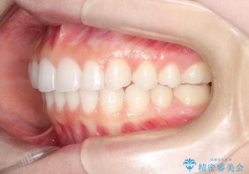 出っ歯の矯正治療 歯を抜かずにインビザラインでの治療後