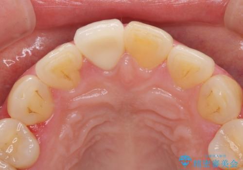 昔ぶつけた前歯 つめもの変色の治療後