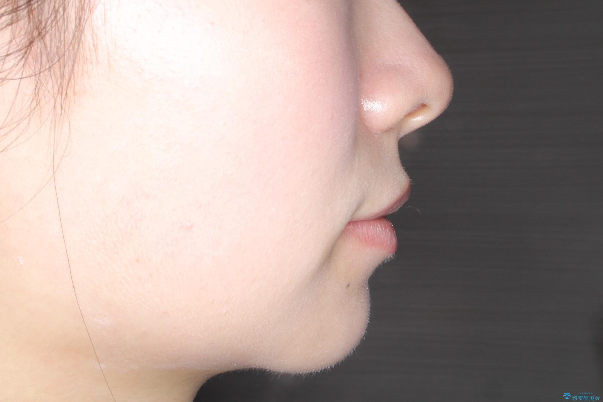 出っ歯の矯正治療 歯を抜かずにインビザラインでの治療後(顔貌)