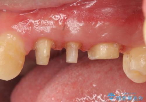 オールセラミッククラウン 根管治療・深い虫歯の治療の治療中