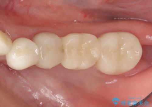 オールセラミッククラウン 銀歯を白い歯への症例 治療後