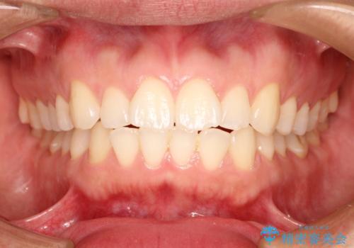インビザラインで前歯のがたつきを目立たずに矯正治療の治療前