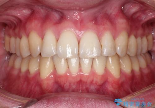 前歯の凸凹をきれいにしたい。インビザラインによる治療の治療後