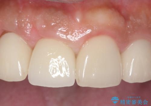 オールセラミッククラウン 土台ごと外れた前歯の補綴の症例 治療後