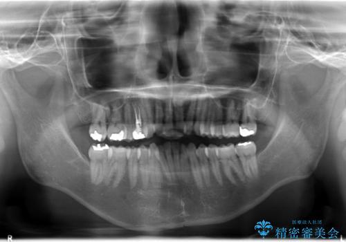 フルリンガル矯正 非抜歯でガタつきを整えるの治療前