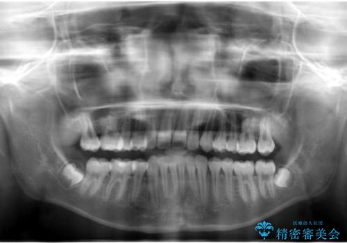 埋まっている犬歯を抜歯して、歯列矯正の治療後
