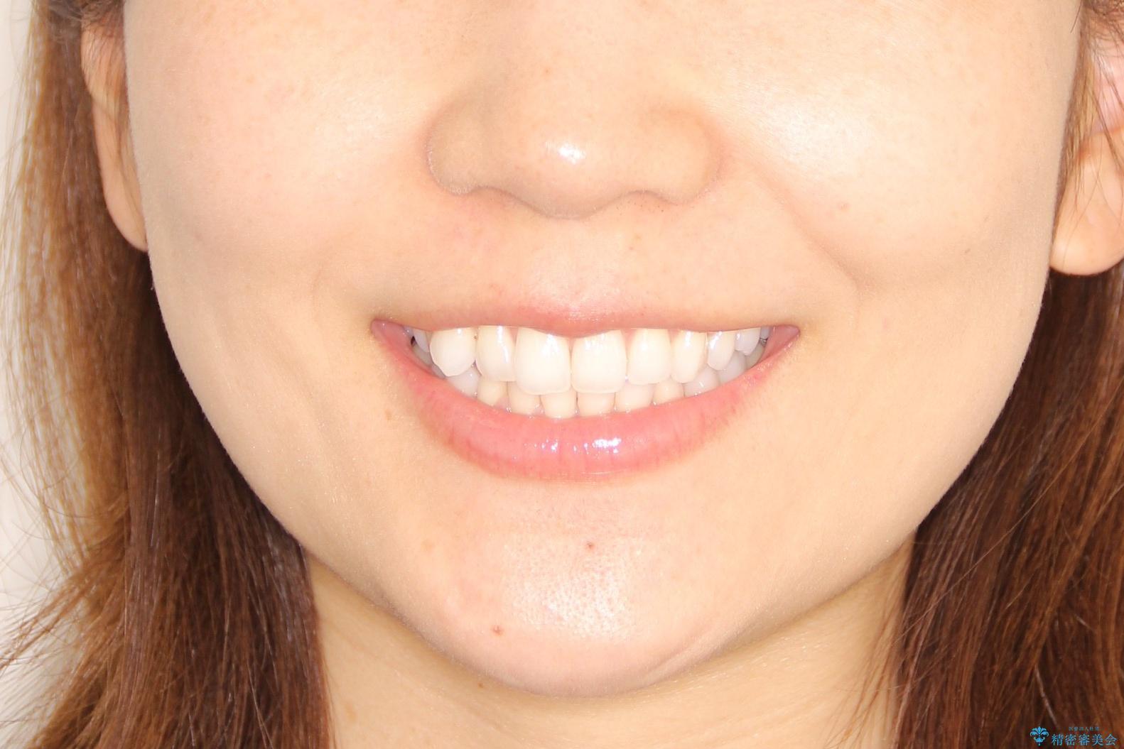 八重歯をマウスピース矯正で治療し、レーザーホワイトニングを行った症例の治療前(顔貌)