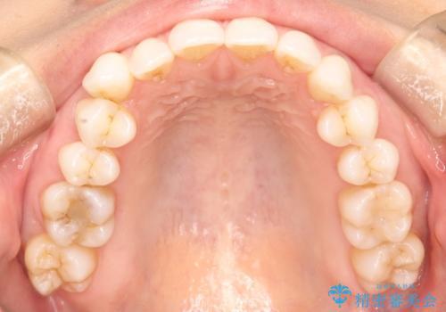 八重歯をマウスピース矯正で治療し、レーザーホワイトニングを行った症例の治療前
