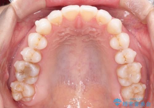 八重歯をマウスピース矯正で治療し、レーザーホワイトニングを行った症例の治療中