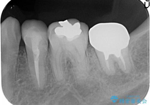 奥歯が痛い。根管治療からセラミッククラウンの治療前