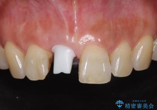 前歯 インプラントによる欠損補綴の治療中
