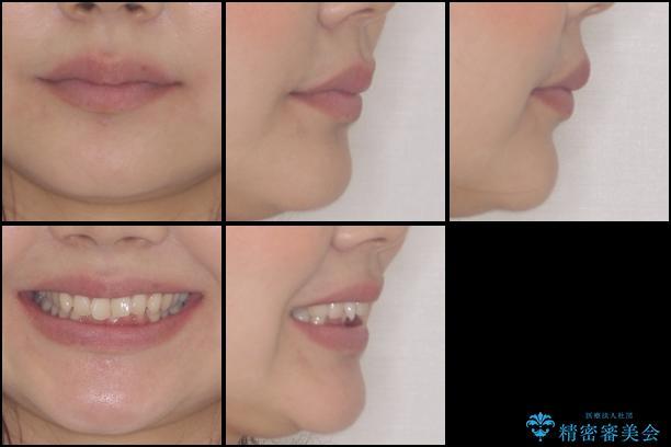 インビザラインによるディープバイトの改善の治療前(顔貌)