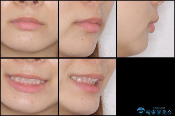 インビザラインによる前歯の矯正治療の治療前(顔貌)