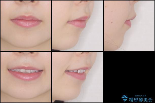 デコボコと深い咬み合わせの改善 インビザラインによる矯正治療の治療前(顔貌)