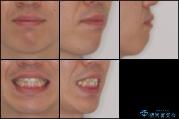 前歯の歯並びとクラウンを改善 インビザラインとオールセラミックの治療前(顔貌)