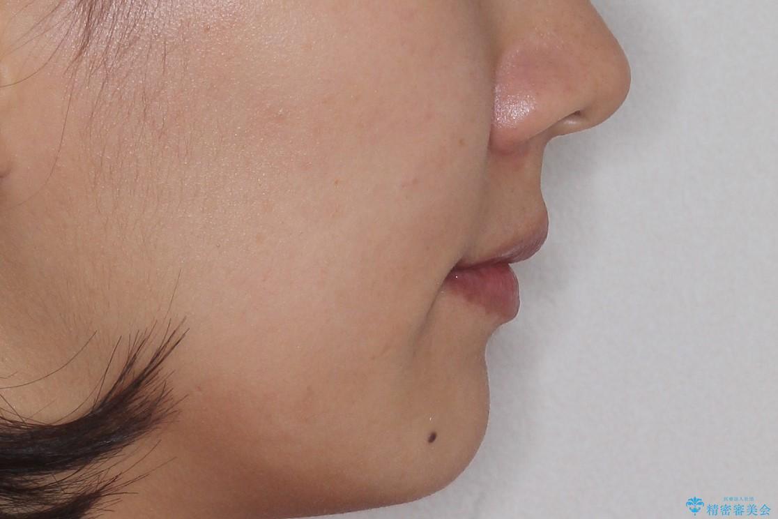 ハーフリンガル矯正 抜歯をして前歯を下げるの治療後(顔貌)