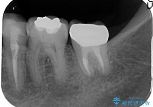 奥歯が痛い。根管治療からセラミッククラウンの治療後