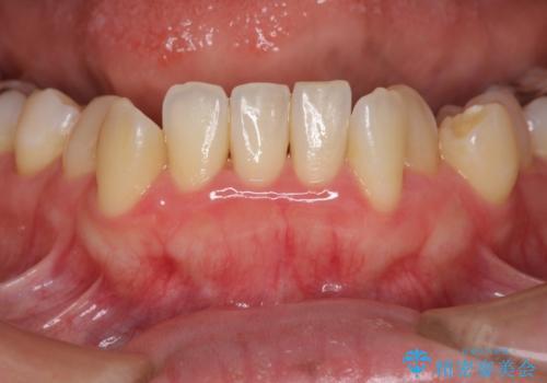 歯周初期治療の重要性の治療後